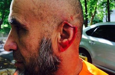 Москвич откусил ухо дворнику-мигранту за просьбу не выгуливать собаку на клумбе