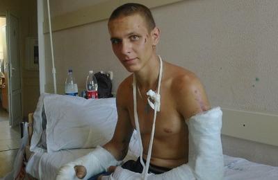Полиция не подтвердила национальный мотив нападения на семью скинхеда на Кубани