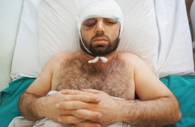 Правозащитники объявят сбор денег на операцию для раненного в метро мигранта