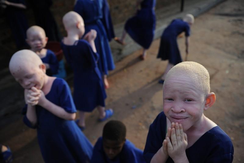 альбиносы